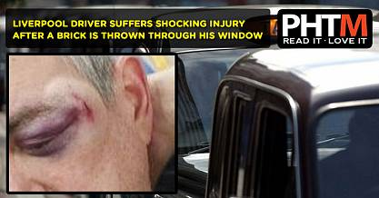 LIVERPOOL DRIVER SUFFERS SHOCKING INJURY AFTER A BRICK IS THROWN THROUGH HIS WINDOW