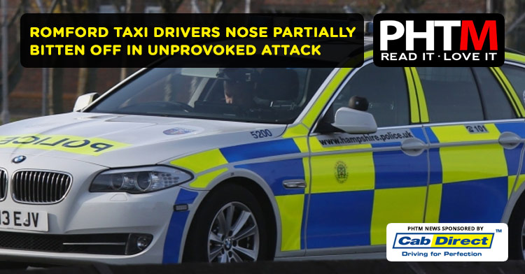 ROMFORD TAXI DRIVERS NOSE PARTIALLY BITTEN OFF IN UNPROVOKED ATTACK
