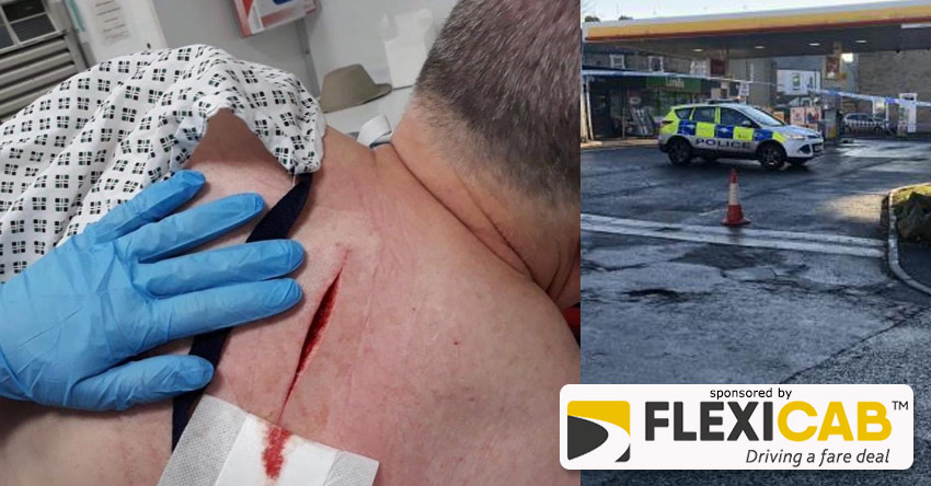TAXI DRIVER SUFFERS SERIOUS STAB WOUND DURING DARWEN GARAGE ROBBERY BID