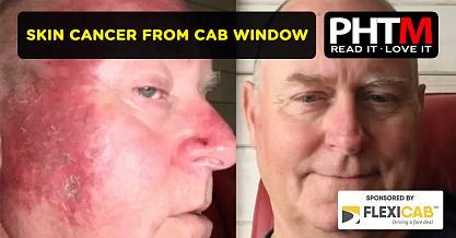 SKIN CANCER FROM CAB WINDOW