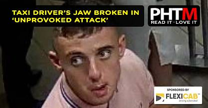 TAXI DRIVERS JAW BROKEN IN UNPROVOKED ATTACK